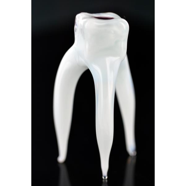 Zahn Mit Karies - Glasfigur Modell eines Zahnes